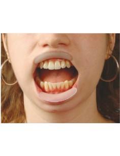 Divaricatore orale labiale